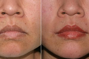 Rosacea Treatment In Edmond Enid Ok Silver Leaf Dermatology